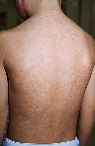measles on the back body boy