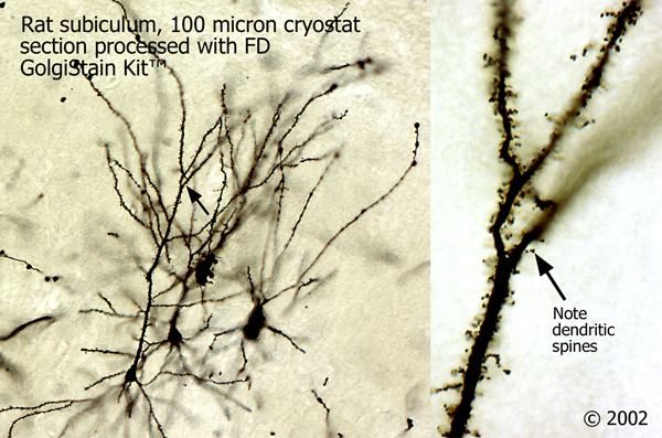 rat-hippocampus-100-micron-cryostat-section-processed-with-fd-rapid-golgistaintm-kit-sample-2